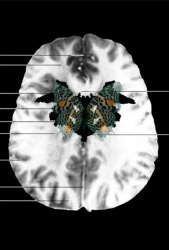 MRI Butterfly (1)