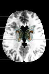 MRI Butterfly (2)