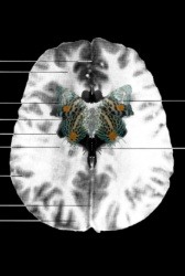 MRI Butterfly (4)
