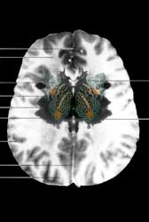 MRI Butterfly (5)