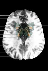 MRI Butterfly (6)