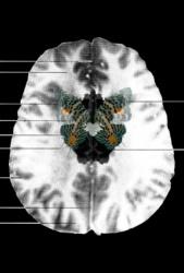 MRI Butterfly (8)