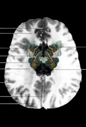 MRI Butterfly (9)