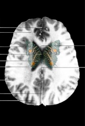 MRI Butterfly (10)