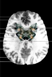 MRI Butterfly (12)
