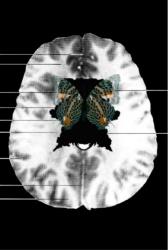 MRI Butterfly (14)
