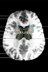 MRI Butterfly (15)