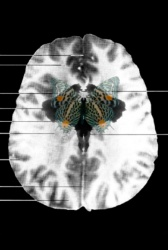 MRI Butterfly (13)