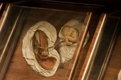 Corpo Duplice (Womb)