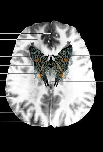Cerebral Spirits: Stalking the Self